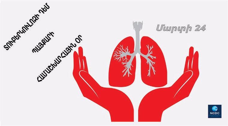 Մարտի 24-ը տուբերկուլոզի դեմ պայքարի համաշխարհային օր